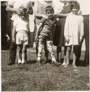 Polio niño